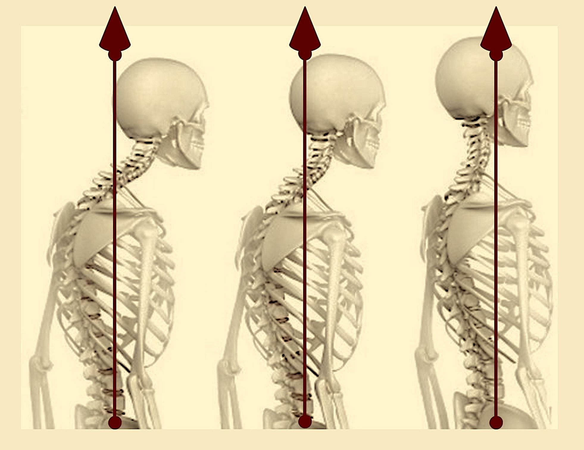 Posture avec flèches couleur 1